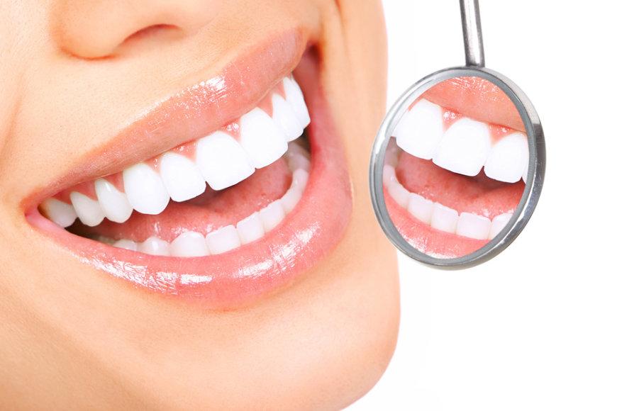 blanqueamiento-dental-malaga